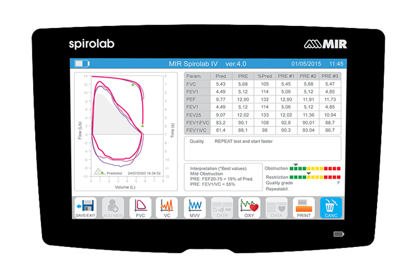 Spirolab Top View Spirometry Results