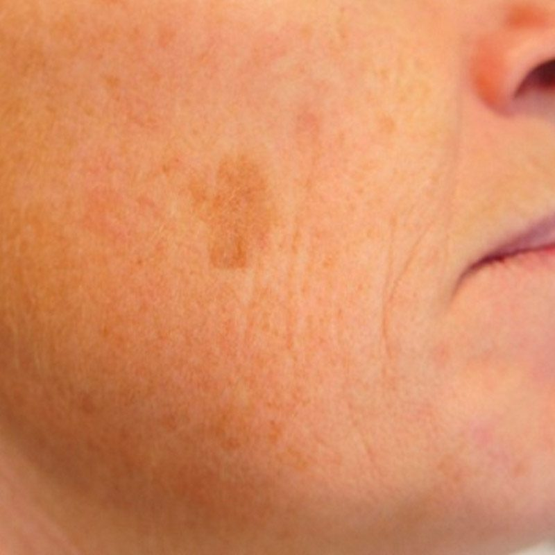 Zone Medical Brown Spot Removal Treatment