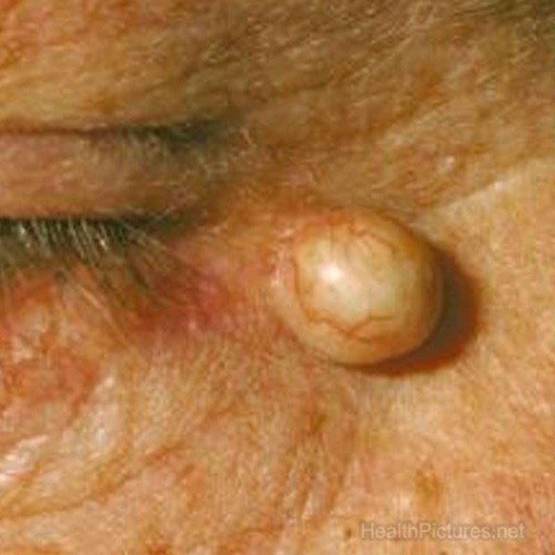 Zone Medical Sebaceous Cyst Removal Treatment